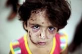 Saldırıda Yaralanan Çocuk