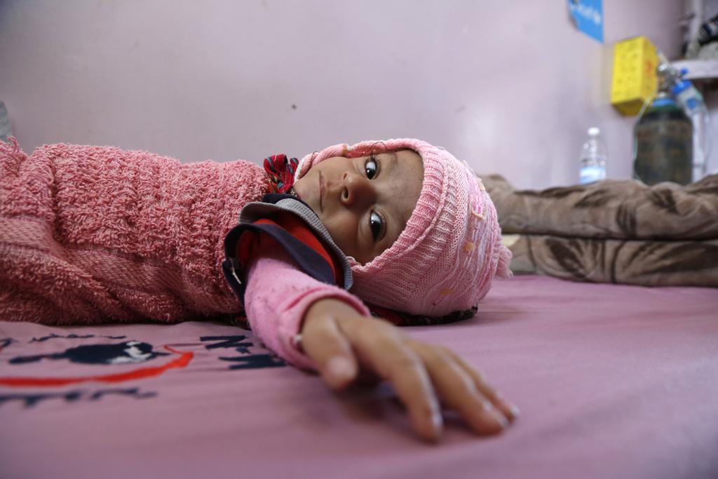 Silent humanitarian calamity in Yemen: Who to blame?